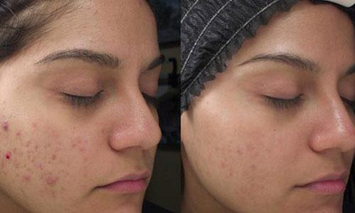 Skin break out treatment